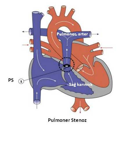 PULMONER-STENOZ.jpg